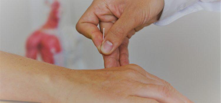 Akupunktur Kopfschmerzen