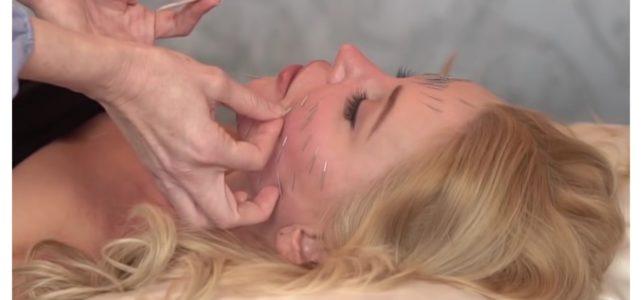 kosmetische akupunktur dübendorf