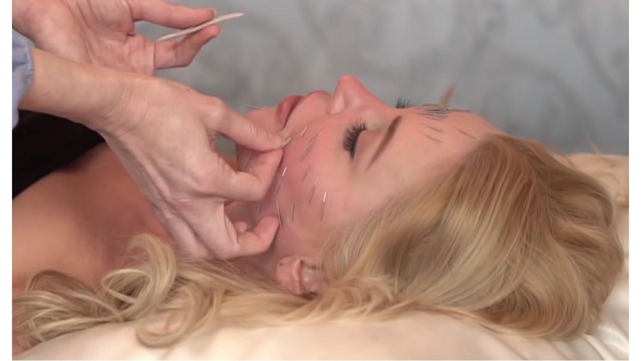 Kosmetische Akupunktur Dübendorf Uster Zürich